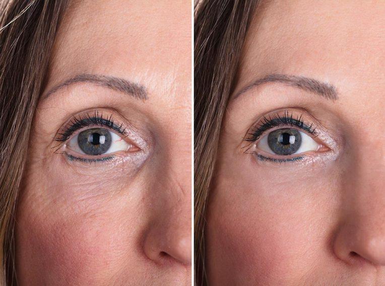 Kobieta przed i po zabiegu odmładzającym - Studio Elix