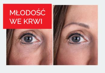 Kobieta przed i po zabiegu odmładzającym 2 - Studio Elix