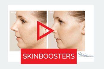 Kobieta przed i po zabiegu na skórę - Studio Elix